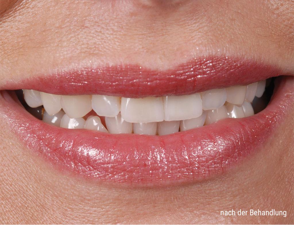 Zähne nach der Behandlung