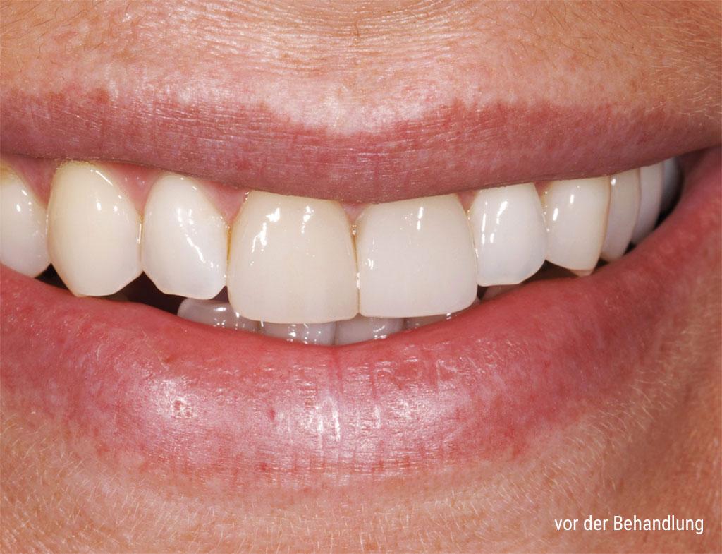 Zähne vor der Behandlung